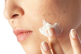 Hilft eine Kosmetikbehandlung bei Akne?